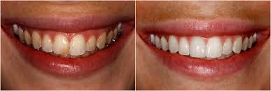 YOUNGER & HEALTHIER SMILE…….RIGHT NOW!